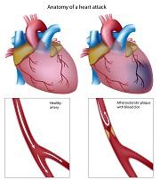 Современное лечение инфаркта миокарда