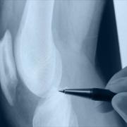 замена коленного сустава в израле
