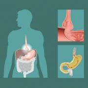 Грыжа пищевода операция