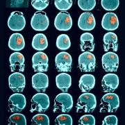 radiohirurgiya Izrail%27 0 - Радиохирургия в Израиле – агрессивная терапия рака