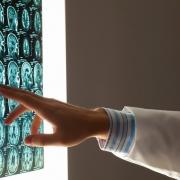 rak golovnogo mozga 0 - Лечение рака мозга в Израиле