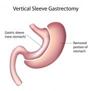 rukavnaia gastroplastika 0 - Рукавная гастропластика желудка