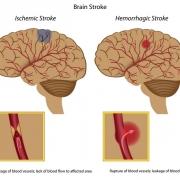 Сосудистые заболевания головного мозга лечение