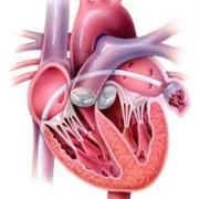замена аортального клапана в израиле