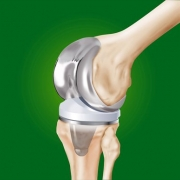 zamena kolennogo sustava Izrail%27 0 - Замена коленного сустава (BIOMET SIGNATURE)