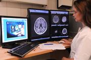 neirooncologija v izraile - Нейроонкология в Израиле. Лучшие нейроонкологи