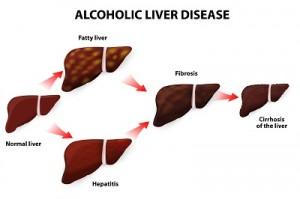 alcoholic liver 300x199 - Лечение печени в Израиле